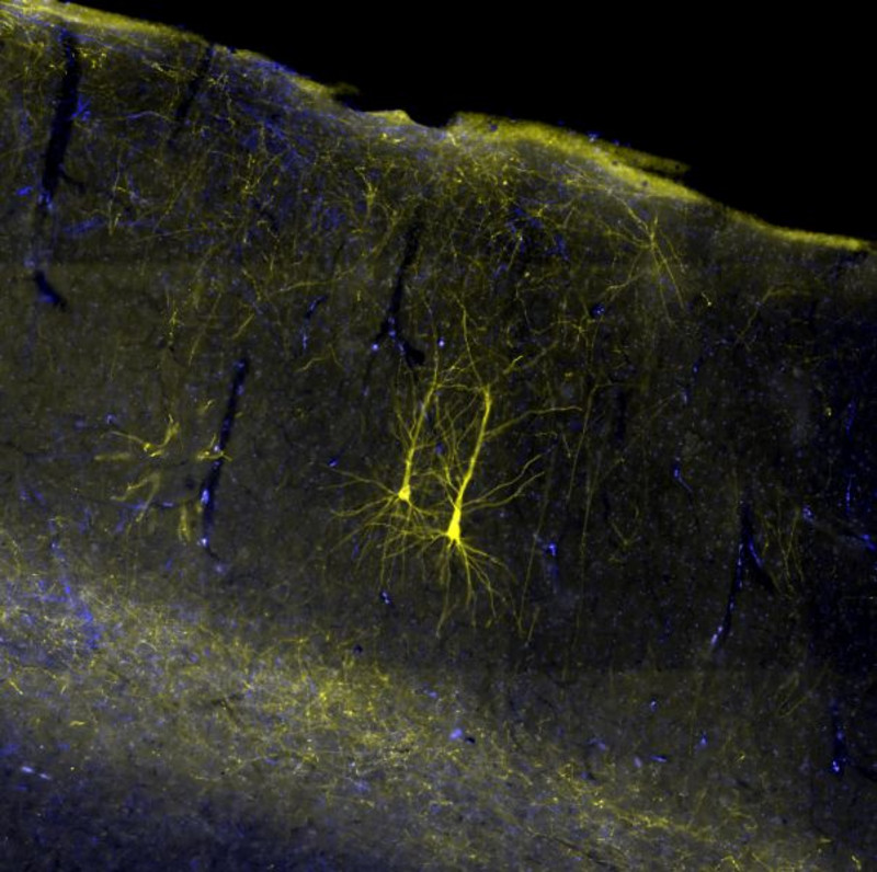 Two nerve cells in the brain of a rhesus monkey visualized with a yellow fluorescent dye. Photo: Michael Fortuna
