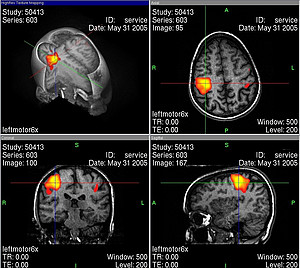 Overview of the different levels of observation of a fMRI-scan after left finger tapping. The color-coded area is an indication of increased brain activity. Image: M.R.W.HH at de.wikipedia (Public domain), Wikimedia Commons