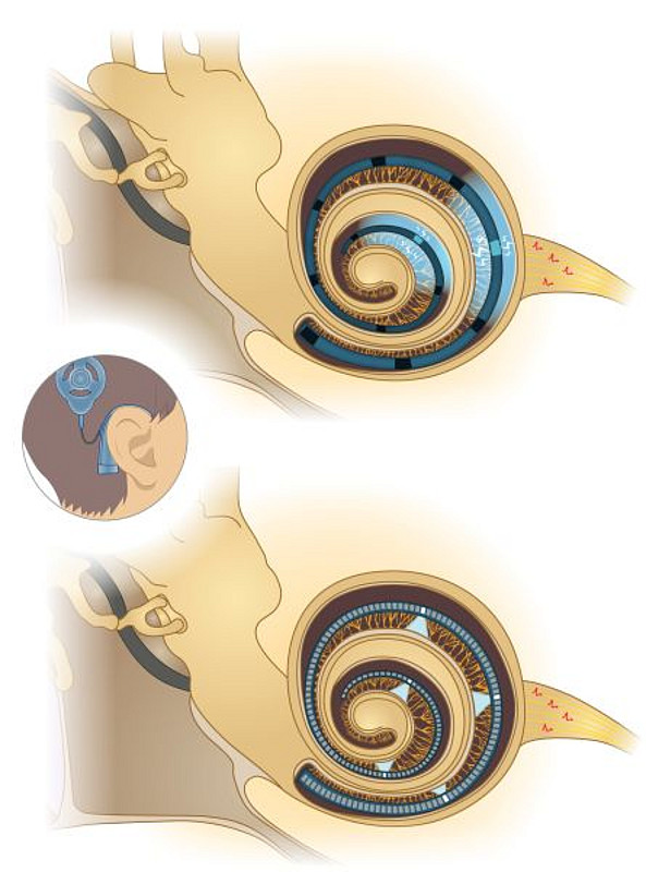 Comparison of cochlear implant function. Above: electrical implant in the cochlea. Bottom: future optical implant. Illustration: Institute of Auditory Neurosciences, UMG