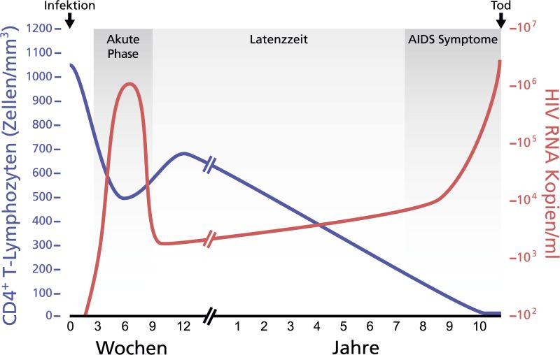 Course of an untreated HIV infection until death by AIDS. The HI virus load per ml of blood plasma is applied against the number of CD4+ T cells per mm³ blood. Graph: Thomas Splettstößer, CC0, https://commons.wikimedia.org/w/index.php?curid=29883